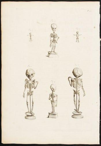 Govard Bidloo, human anatomy, human skeleton, Baroque art, business art